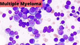 best hospital for multiple myeloma