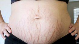 postpartum belly