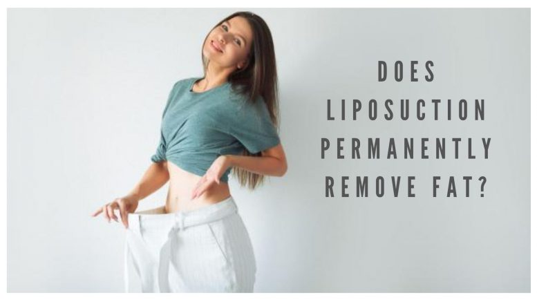 Does Liposuction Permanently Remove Fat